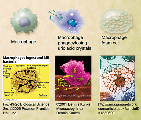Macrophages, foam cells