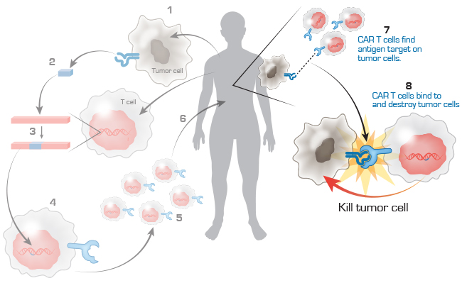 CAR T cell immunotherapy