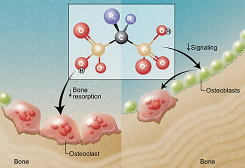 Bisphosphonate signals osteoclasts and osteoblasts,