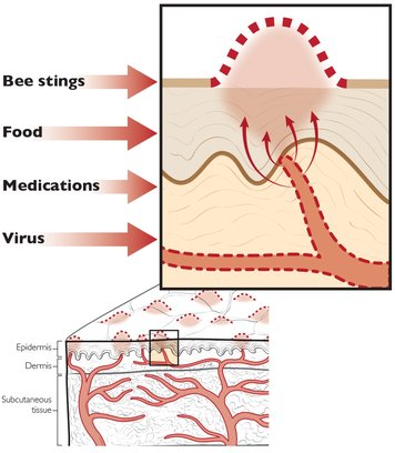 Hives formation, hives causes, hives